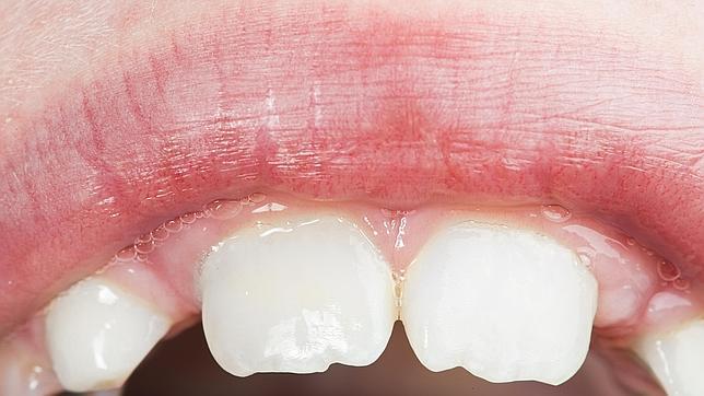porque duelen los dientes y encias