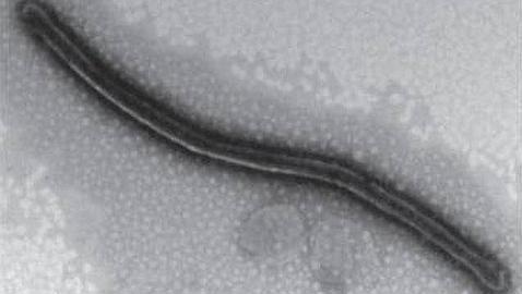 El virus similar al ébola que fue descubierto en Asturias