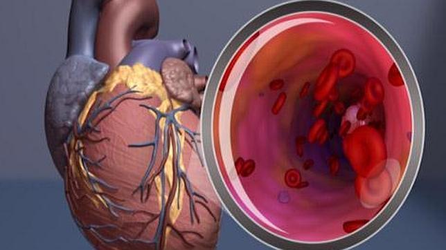 Descubren los síntomas vasculares previos a la disfunción eréctil