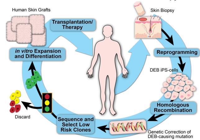 A partir de una biopsia de la piel del paciente se extraen las células que se reprogramas y se convierten en células iPS. Después de un proceso de recombinación que corrige los defectos genéticos que causan la enfermedad, las células se cultiva y vitro para posteriormente trasplantarse al mismo paciente