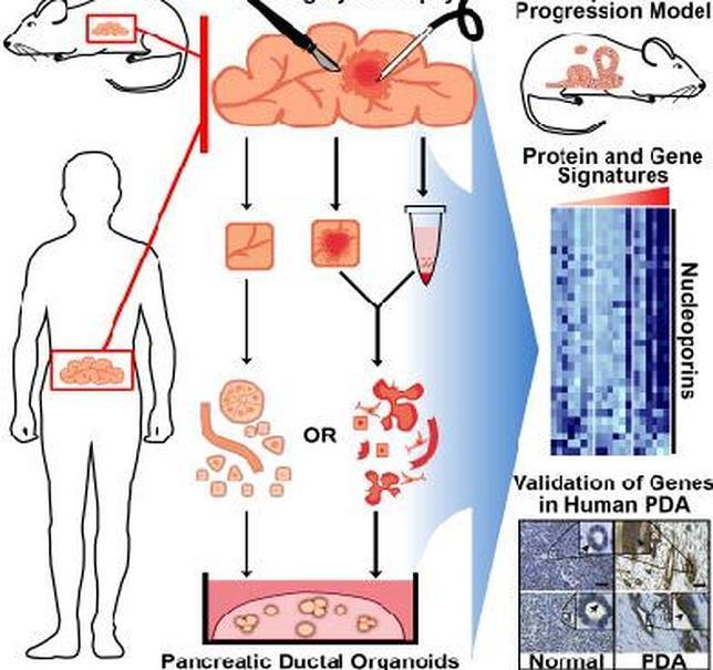 Fabrican organoides en 3D de células pancreáticas cancerosas