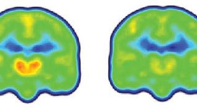 A la izda un cerebro de una persona con dolor crónico donde se ve la activación de la proteína (naranja y rojo), y a la dcha el de una personas sana, sin activación de la proteína
