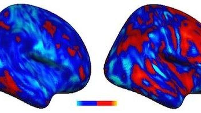 A la izda un cerebro de una persona sin autismo y a la dcha el de una persona con este trastorno, en el que se ven las diferencias en las conexiones cerebrales