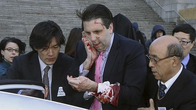 Mark Lippert tras el ataque