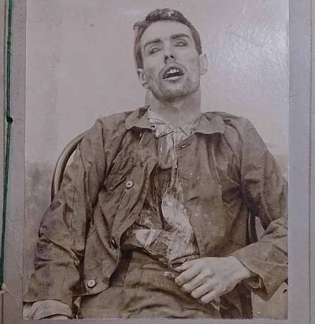 Como se muestra en la imagen del cadáver de Mateo Morral, su ropa no resultó quemada tras el disparo, por lo que se descarta el suicidio