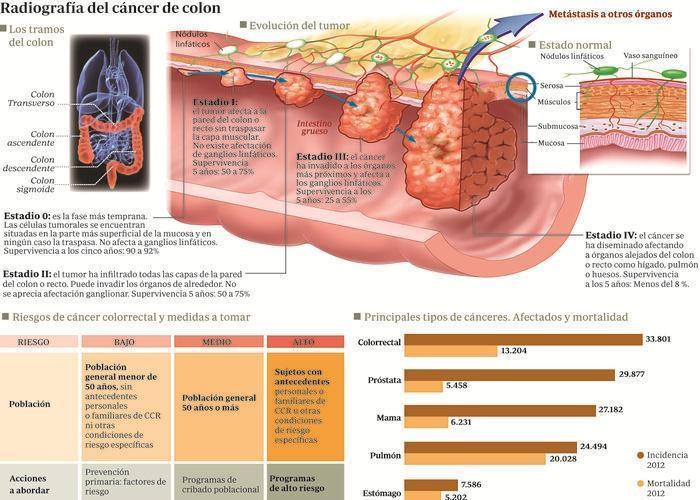 El cáncer de colon se puede curar si se detecta a tiempo