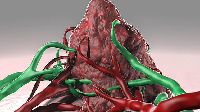 Utilizan con éxito vacunas personalizadas para luchar contra el melanoma