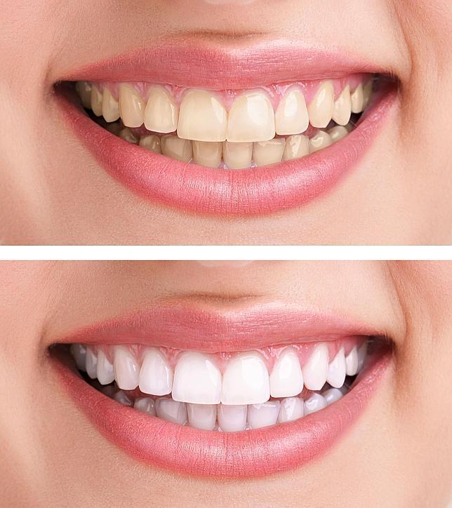 Blanqueamiento dental antes y despues de adelgazar