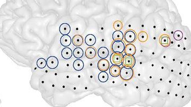 Graban por vez primera el efecto de los acúfenos en un cerebro vivo