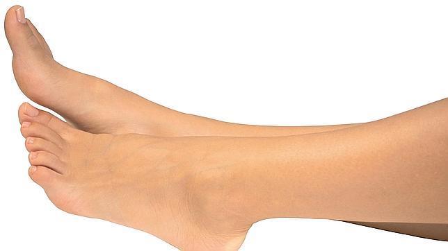 La hinchazón en los pies es una afección común en mujeres sanas que han pasado por varios embarazos