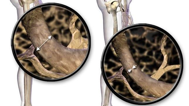 Un fármaco para la osteoporosis parece ser eficaz en el control de la diabetes