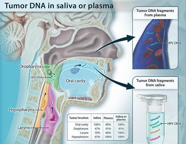 Un sencillo test de saliva o sangre detecta el cáncer de cabeza y cuello