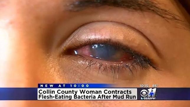 Se queda ciega de un ojo tras participar en una carrera en el barro