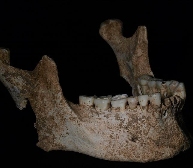 La mandíbula de Filipo II de Macedonia