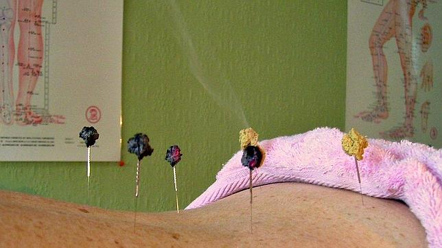 Una paciente en una sesión de acupuntura