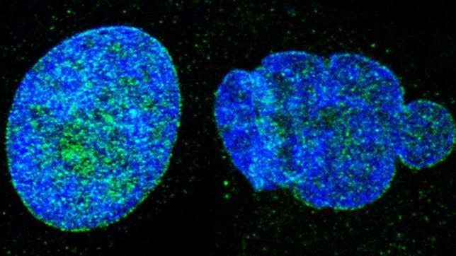 Logran reprogramar el envejecimiento en ratones y en células humanas