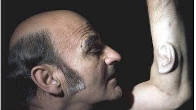 «Stelarc», con su tercera oreja
