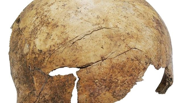 El cráneo (que incluye un golpe) de uno de los cuerpos hallados, Tenía ocho años al morir