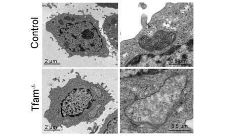 Imagen de microscopia electrónica de una mitocondria control (panel de arriba) y una mitocondria dañada por la eliminación del mtDNA (panel de abajo)