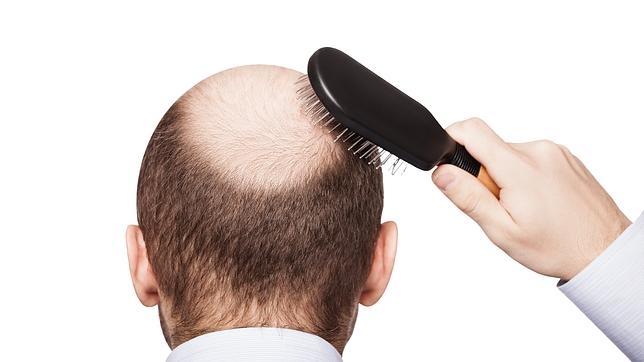 Uno de los medicamentos contra la alopecia tiene peores efectos secundarios de lo que se creía