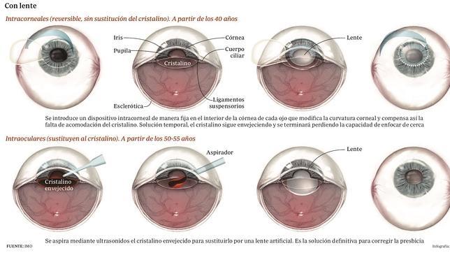 Por medio de lentes, la presbicia puede corregirse
