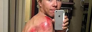 El escalofriante selfi del compañero de Contador