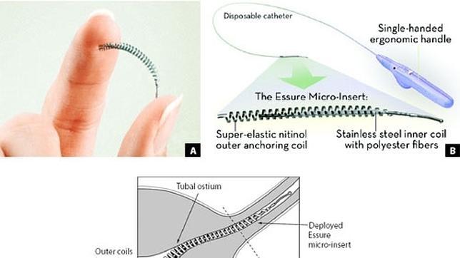 El dispositivo anticonceptivo Essure