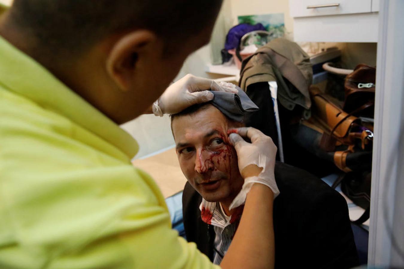 Los partidarios de Chávez han agredido brutalmente a diputados de la oposición