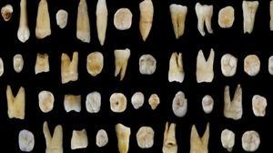 Algunos de los 47 dientes hallados en la excavación de las cuevas chinas