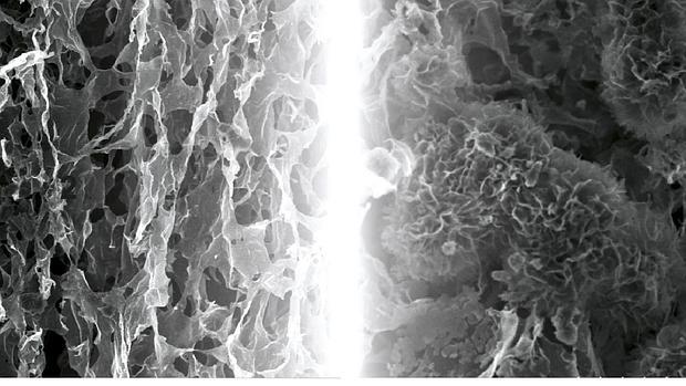 Microfotografía del electrodo de grafeno de este novedoso sistema