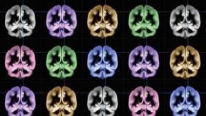 Localizan el área del cerebro que nos hace felices