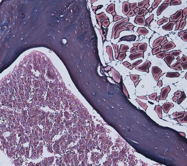 Científicos españoles demuestran que el cáncer se puede originar sin mutaciones