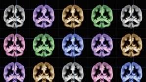 Diez descubrimientos sobre el cerebro en 2015