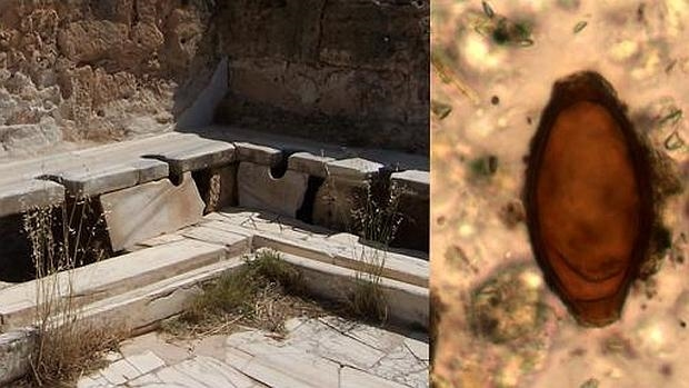 Aseos públicos romanos en Leptis Magna, Libia, y huevo de triquina