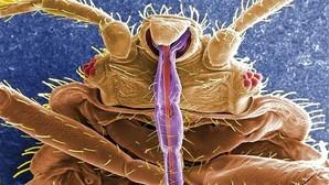 Una chinche, fotografiada a través un microscopio electrónico