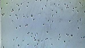 Espermatozoides al microscopio