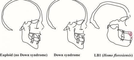 Perfiles de cráneos en personas con y sin síndrome de Down