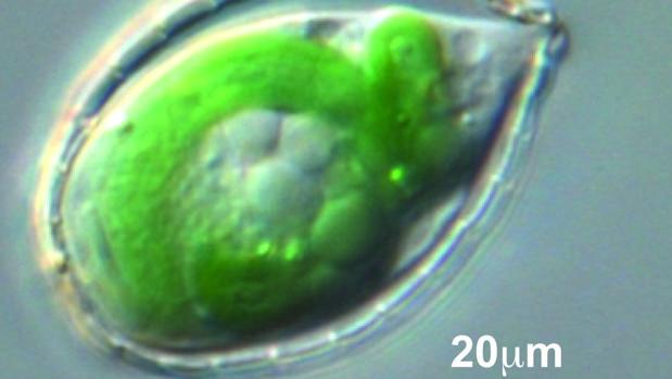 Paulinella, una ameba que hace 100 millones de años engulló a una bacteria fotosintética y comenzó a usar sus habilidades