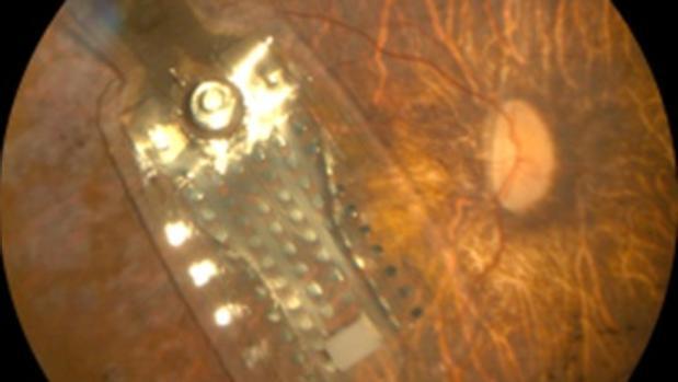 Una prótesis de retina implantada en el ojo de un paciente