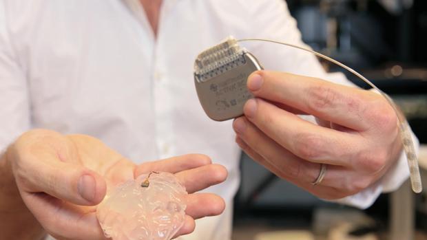 Un implante en el cerebro y otro en la médula permiten recuperar el movimiento tras la lesión