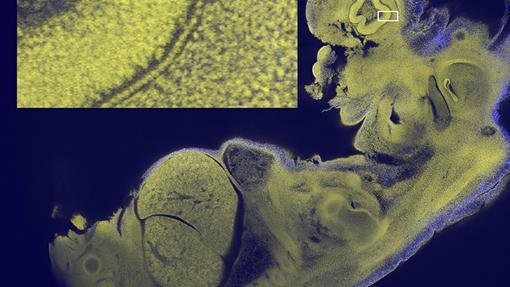 Imagen del embrión de un ratón. En el rectángulo, ampliado a la izquierda, detalle del ojo