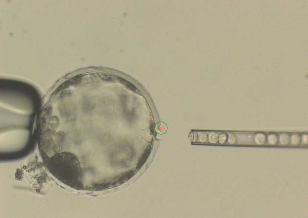 Inyección de células humanas en en el interior de un embrión de cerdo
