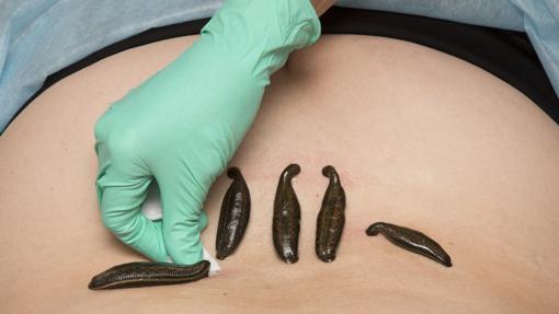 Tradicionalmente se utilizaron para curar varias dolencias