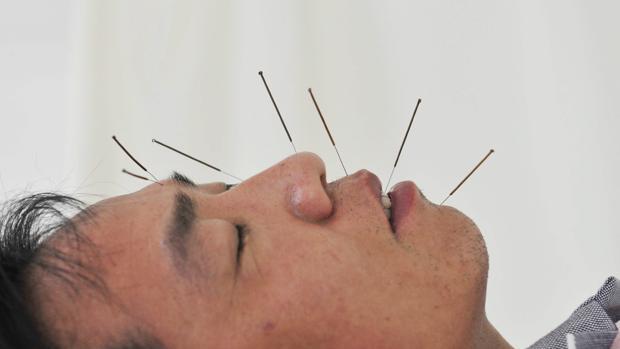 Un hombre se somete a una sesiónde acupuntura para corregir un problema de parálisis facial en un hospital en Shenyang (China)