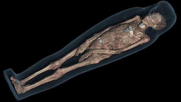 El remedio curativo del polvo de momia