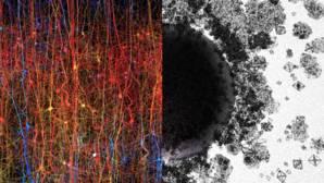 La imagen ilustra un universo de estructuras y espacios multidimensionales. A la izquierda, una copia digital de una parte de la corteza cerebral, la parte más evolucionada del cerebro. A la derecha, formas de diferentes tamaños y geometrías intentan representar estructuras que van desde 1 dimensión a 7 dimensiones y más allá. El «agujero negro» en el medio simboliza un complejo de espacios multidimensionales o cavidades