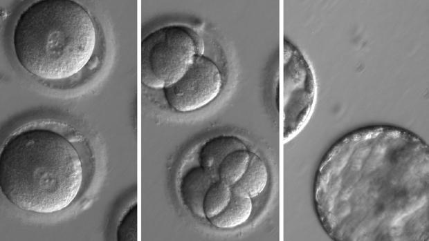 Secuencia al microscopio de los primeros embriones que se corrigieron con éxito para eliminar una enfermedad hereditaria del corazón que causa la muerte súbita