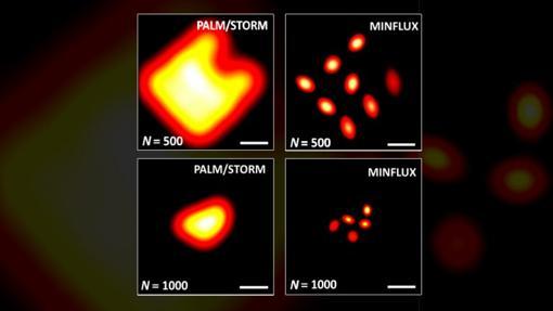 Comparación de metodologías de microscopia de fluorescencia