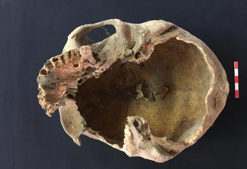 Supuesto cráneo de Arnaldo de Torroja. Se ha podido extraer ADN de su dentadura
