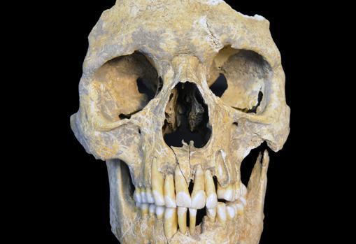 Restos de un hombre de 25 a 30 años infectado con el virus de la hepatitis B y encontrado en el yacimiento de la Edad de Piedra de Karsdorf, Alemania